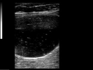 F-Linear-мочевой