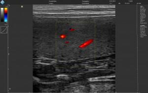 Ветеринарный ультразвуковой сканер LS64 цветной допплер